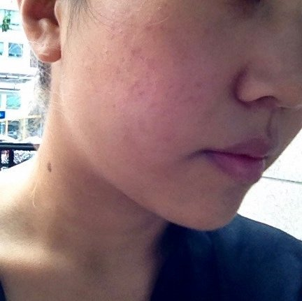 Before: acne scars from thee years of adult acne