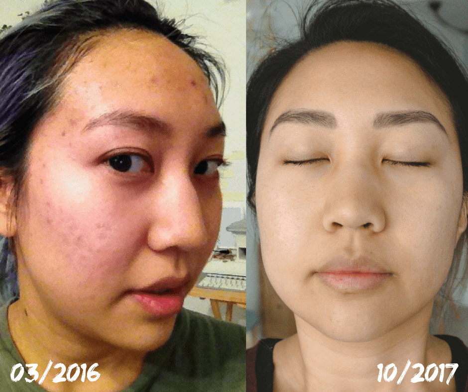 before after acne food allergies acid reflux clear skin