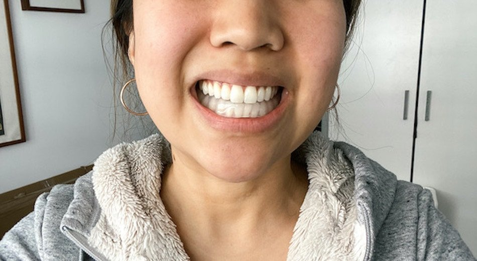 Woman wearing a custom mouth guard for TMJ made at home